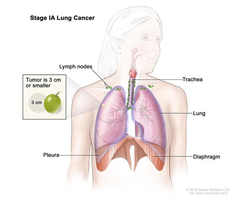 stage 1A of lung cancer - illustration