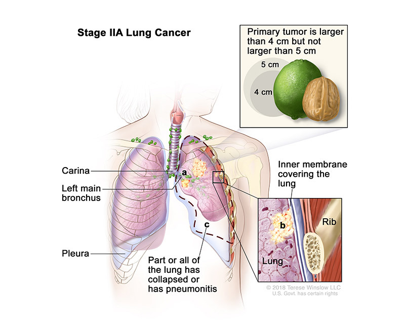 stage 2A of lung cancer - illustration