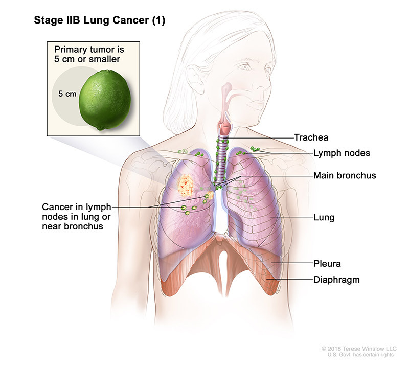 stage 2B part 1 of lung cancer - illustration