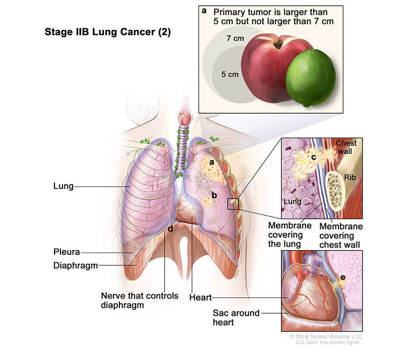stage 2B part 2 of lung cancer - illustration