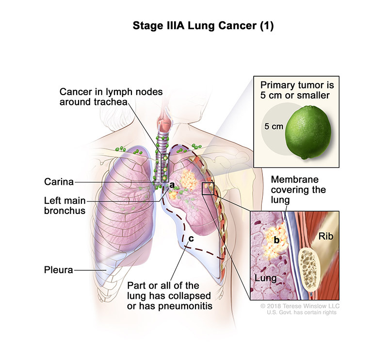 stage 3A part 1 of lung cancer - illustration