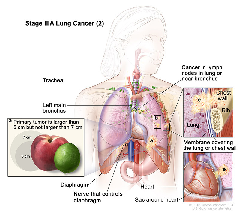stage 3A part 2 of lung cancer - illustration