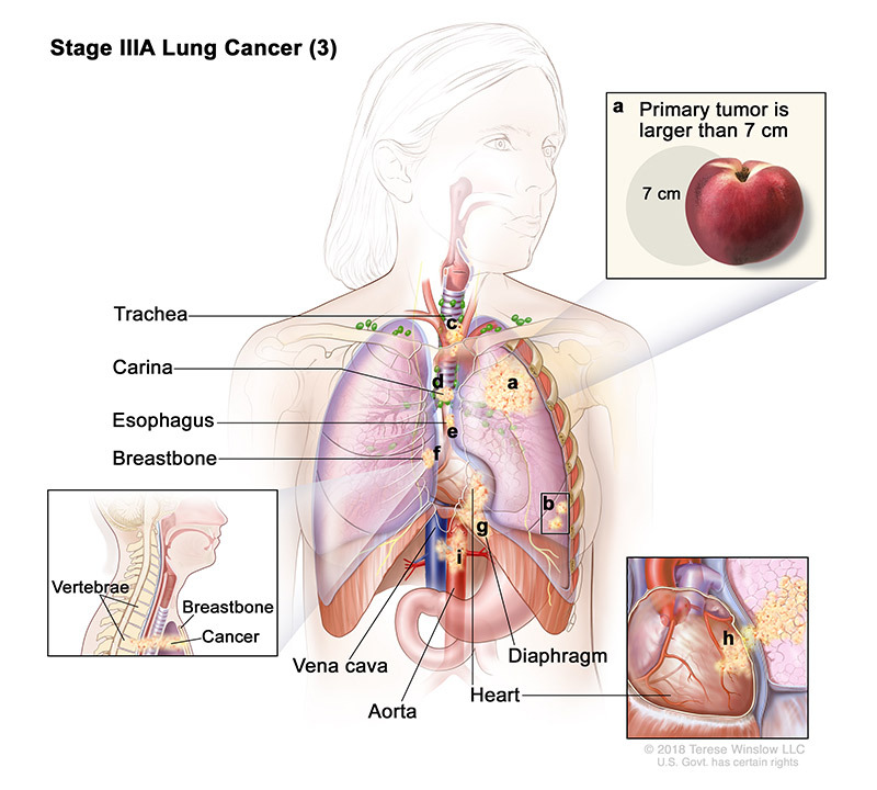 stage 3A part 3 of lung cancer - illustration