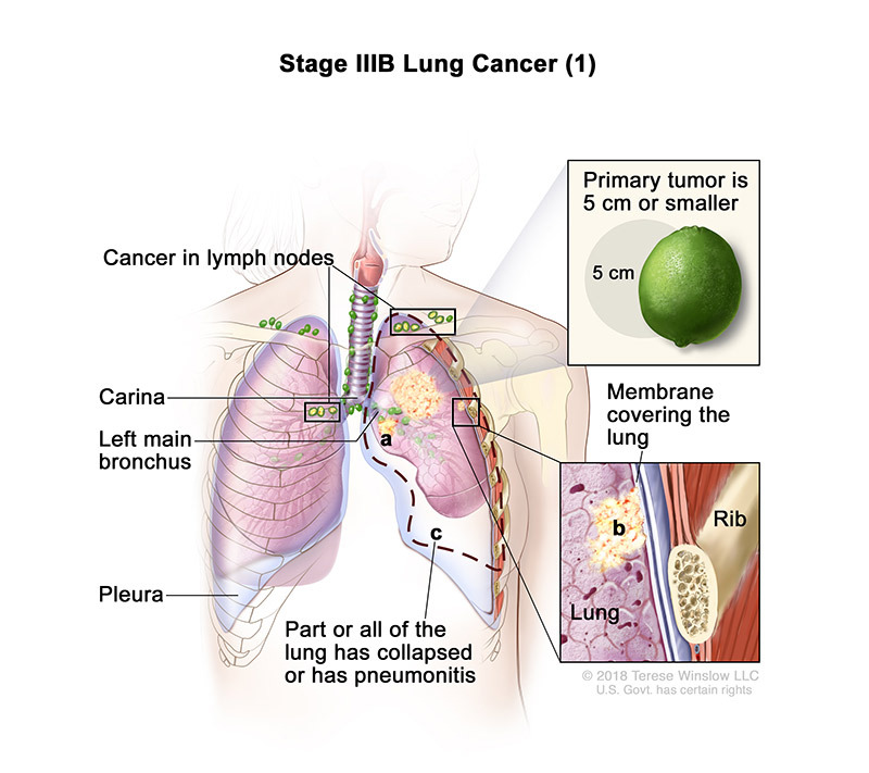 stage 3B part 1 of lung cancer - illustration