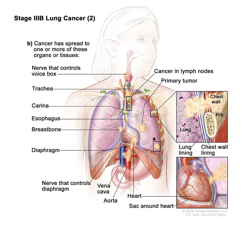 stage 3B part 2 of lung cancer - illustration