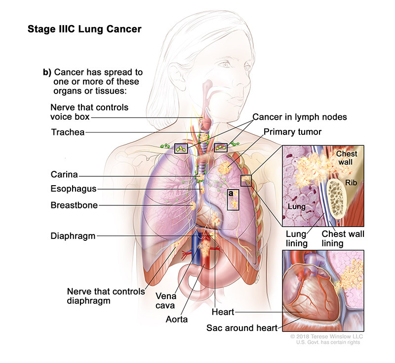 stage 3C of lung cancer - illustration